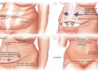 abdominplasty